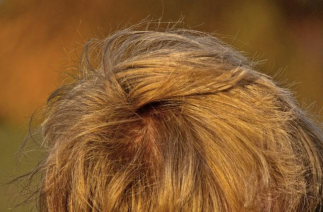 Protege tu cuero cabelludo