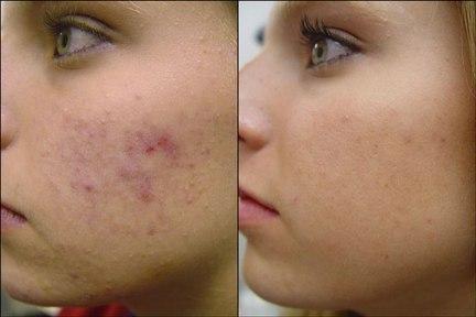 acne-juvenil