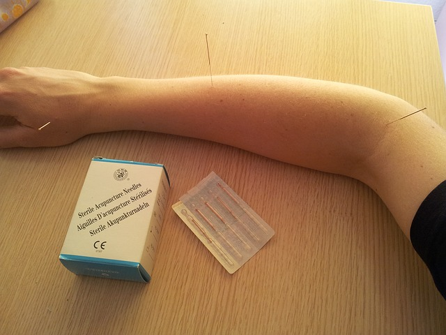 acupuntura-china