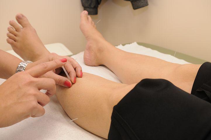 acupuntura-celulitis